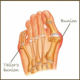 bunion locations